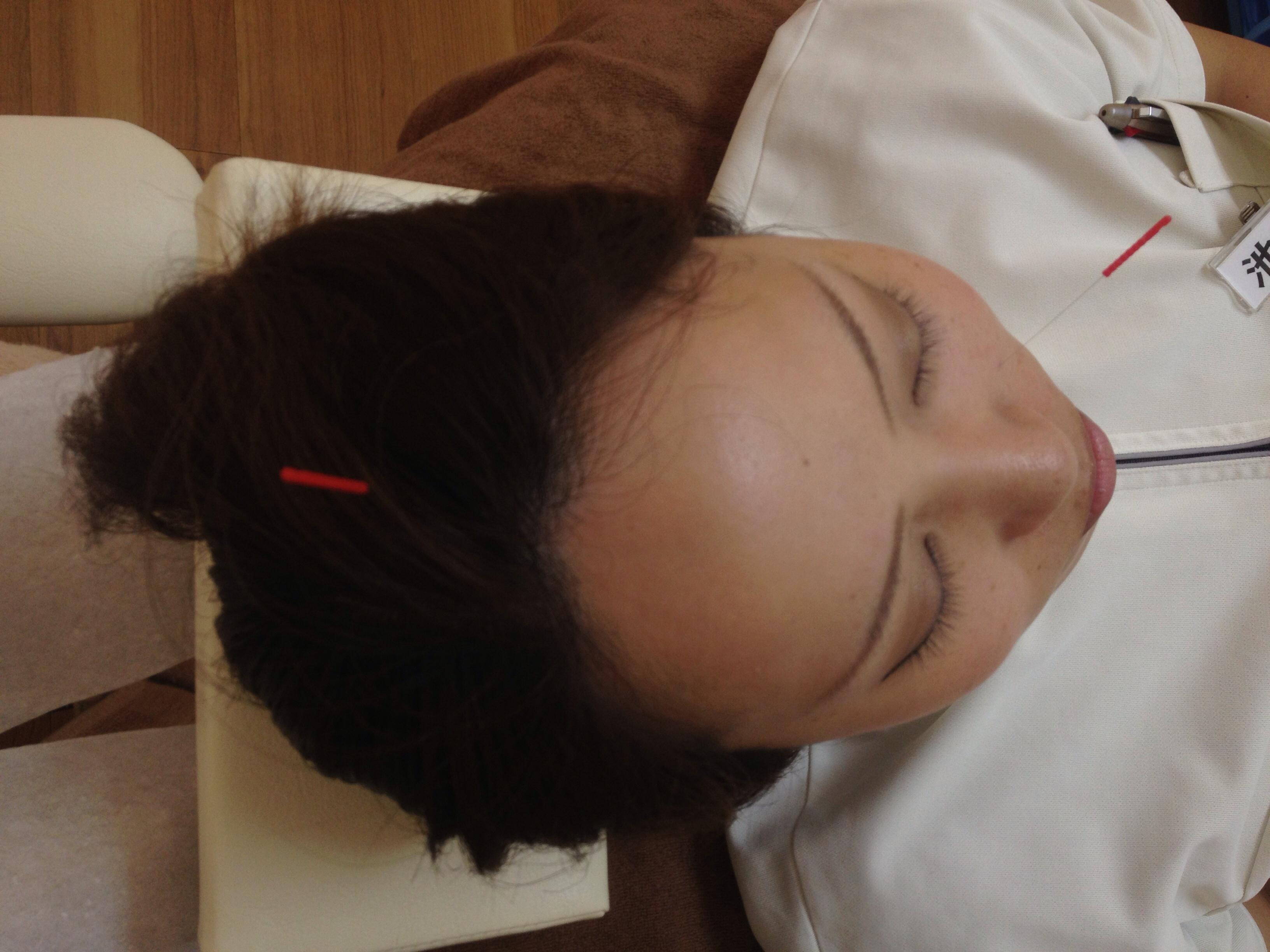 蓄膿症の鍼